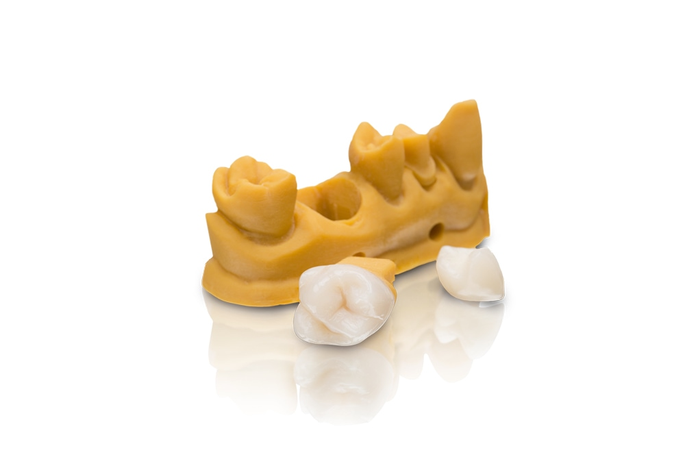VarseoSmile Crown plus is the world's first tooth-colored, ceramic-filled hybrid material for 3D printing of permanent single crowns, inlays, onlays and veneers.